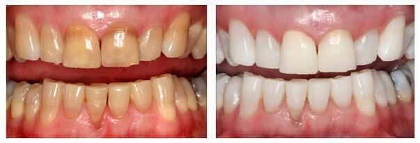 Cách tẩy trắng răng xỉn màu đơn giản mà SIÊU HIỆU QUẢ!! 3